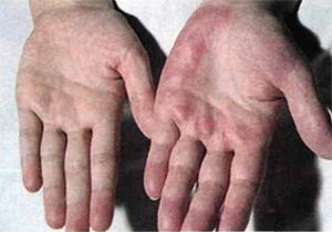 Сосудистая сетка на руках при циррозе печени