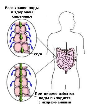Причины диарее