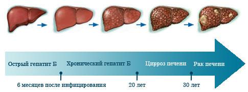Острый и хронический гепатит