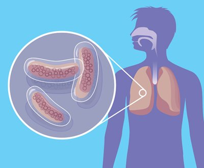 очищение организма от шлаков для похудения