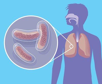 туберкулез легких фото