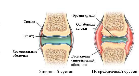 Изменение сустава при артрите