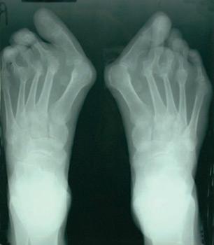 Рентген ступней при артрите