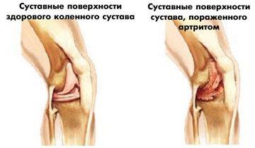 Артроз колена симптомы фото