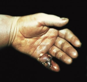 Флегмона руки