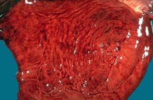 Гиперемия желудка фото