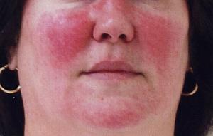 Кожная гиперемия на лице