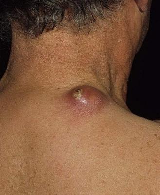Карбункул лечение