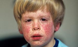 корь симптомы у детей фото
