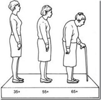 Фото: остеопороз симптомы