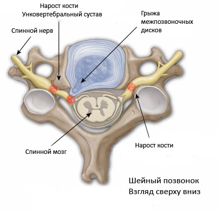 Унковертебральный артроз шейного отдела фото