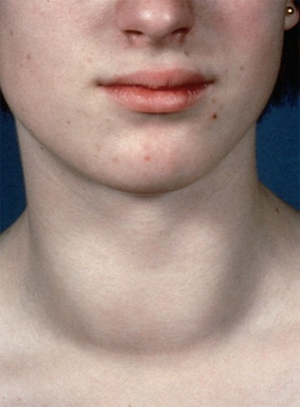 у девушки воспалена щитовидная железа