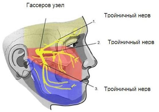 Невралгия тройничного нерва фото