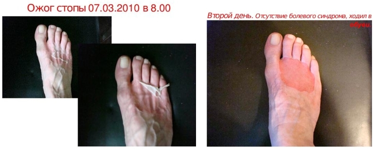 Ожог кипятком ноги что делать в домашних условиях