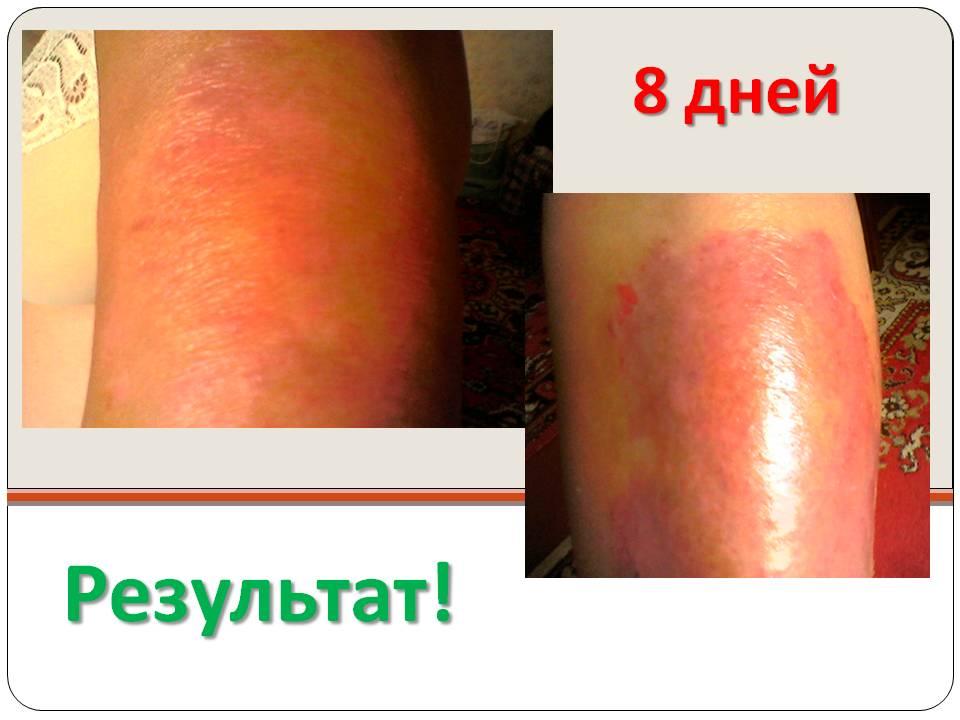 Псориаз после лечения через 8 дней