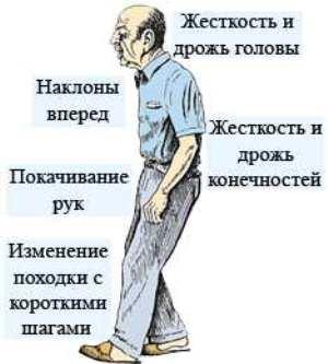 Болезнь Паркинсона признаки