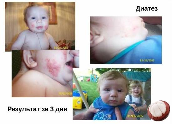 Фото: пищевая аллергия у детей