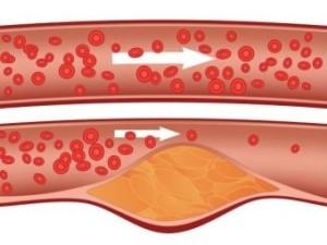 Как холестерин течет по сосудам и образовываются бляшки