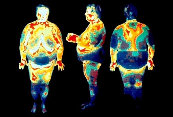 Висцеральный жир на МРТ